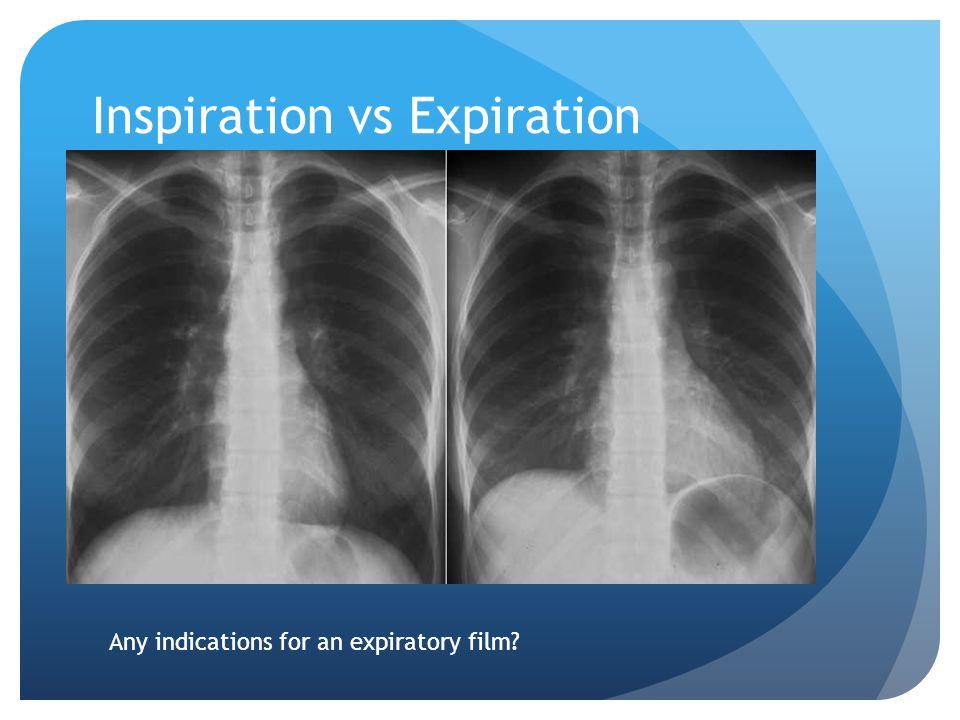 Inspiration vs Expiration