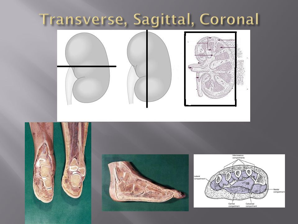 Transverse, Sagittal, Coronal