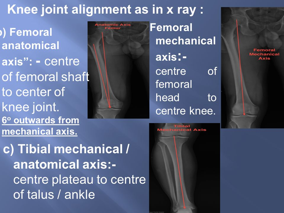 Knee joint alignment as in x ray :