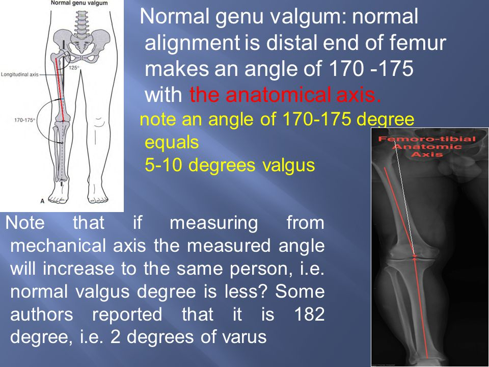 Normal genu valgum: normal alignment is distal end of femur makes an angle of 170 -175 with the anatomical axis.