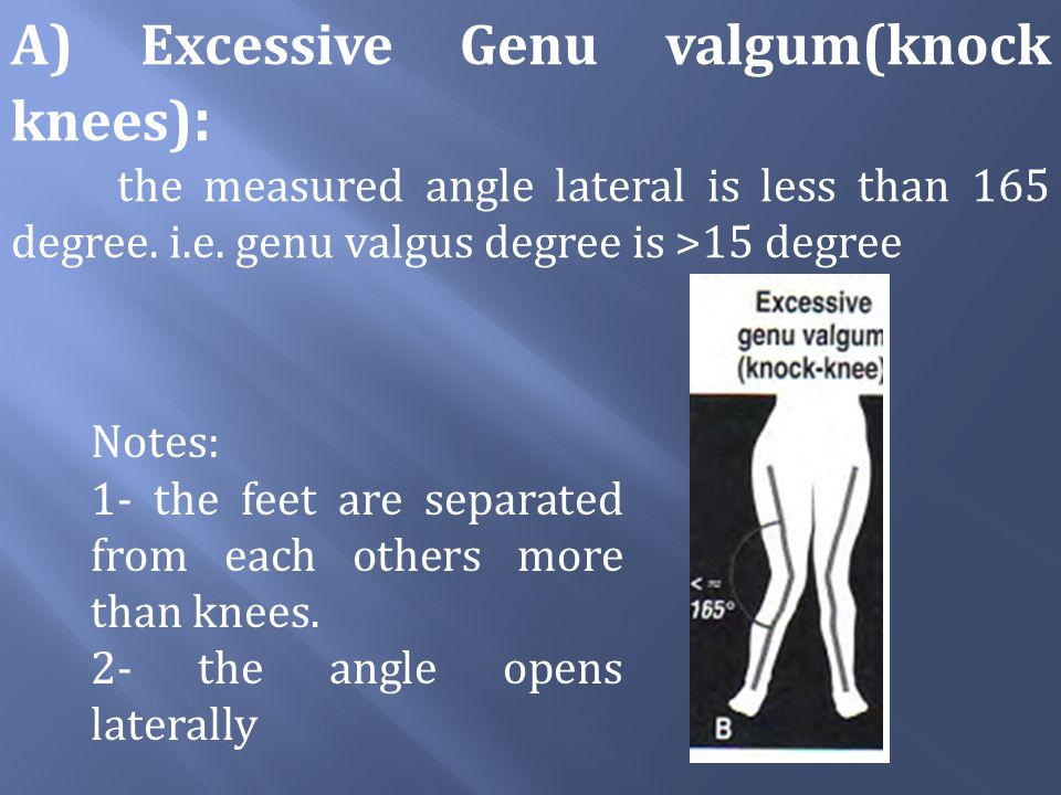 A) Excessive Genu valgum(knock knees):