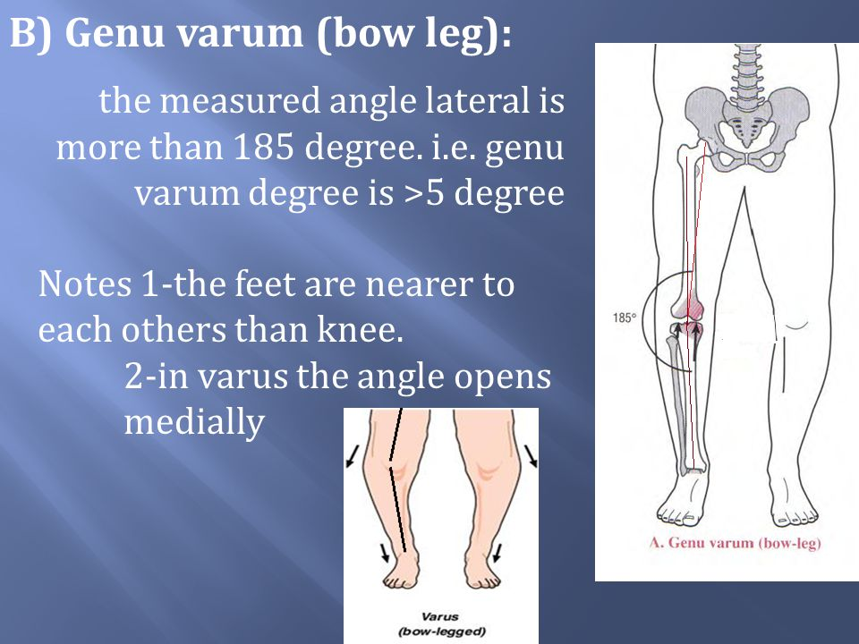 B) Genu varum (bow leg):