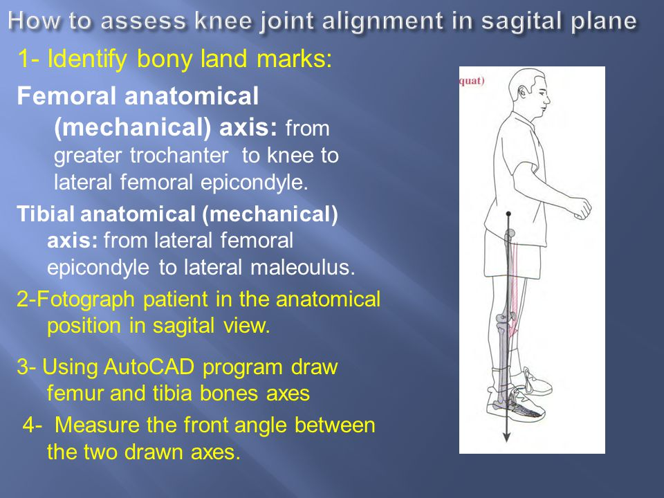 How to assess knee joint alignment in sagital plane
