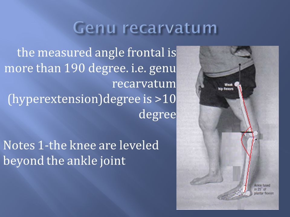 Genu recarvatum the measured angle frontal is more than 190 degree. i.e. genu recarvatum (hyperextension)degree is >10 degree.