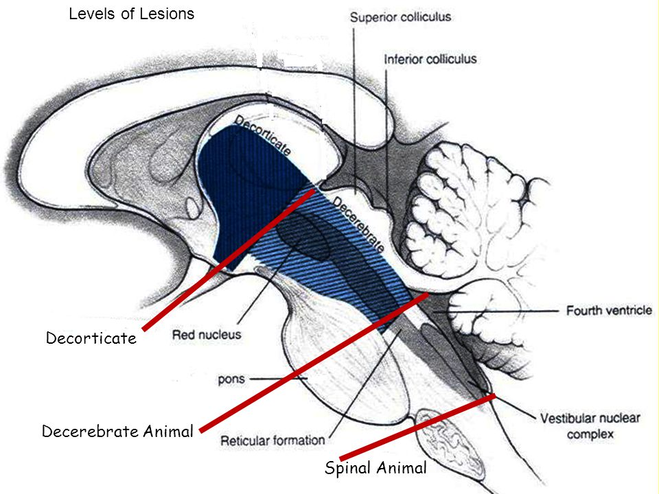 Levels of Lesions Decorticate Animal Decerebrate Spinal Animal