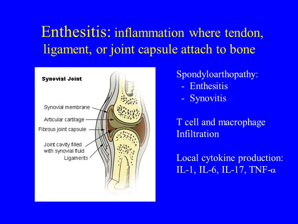 Enthesitis: inflammation where tendon, ligament, or joint capsule attach to bone