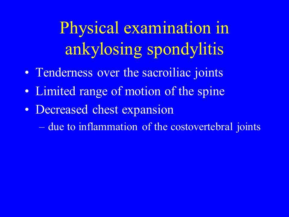 Physical examination in ankylosing spondylitis