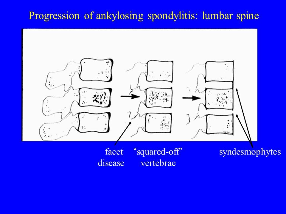 Progression of ankylosing spondylitis: lumbar spine