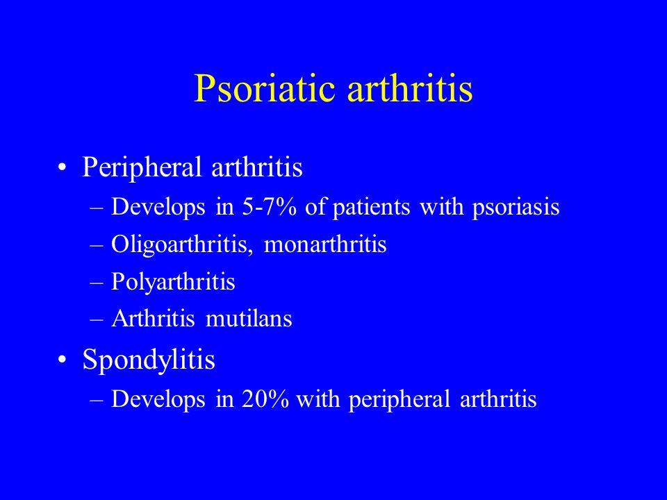 Psoriatic arthritis Peripheral arthritis Spondylitis