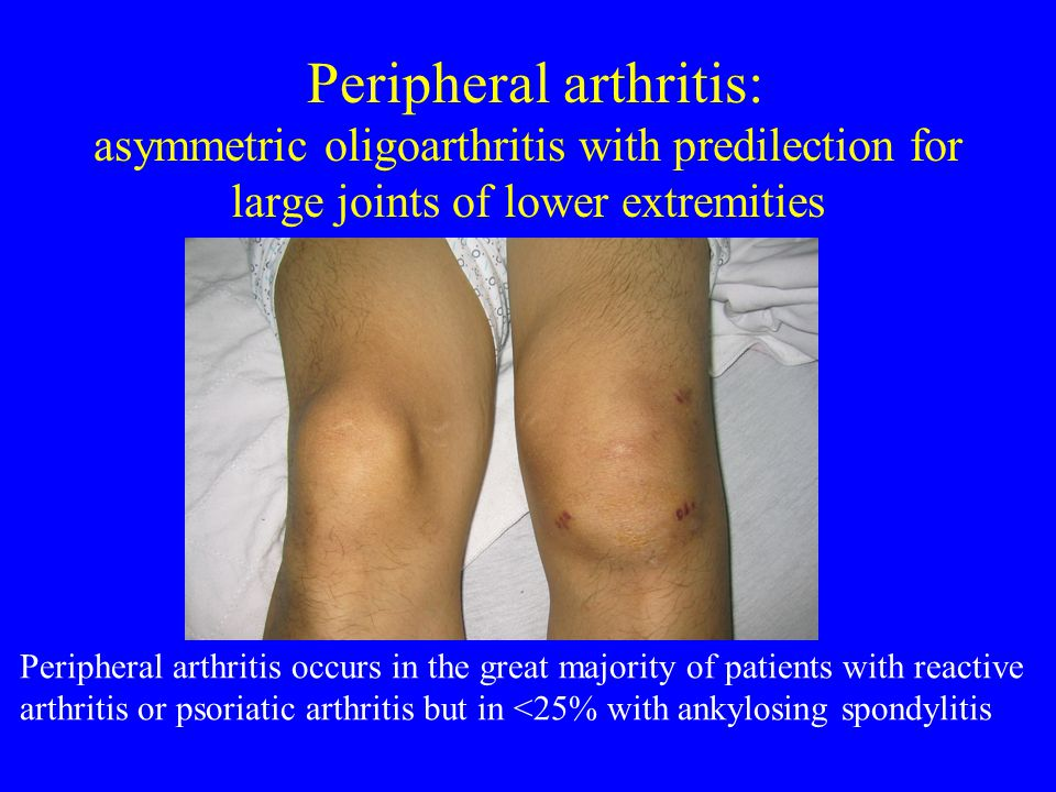 Peripheral arthritis: asymmetric oligoarthritis with predilection for large joints of lower extremities
