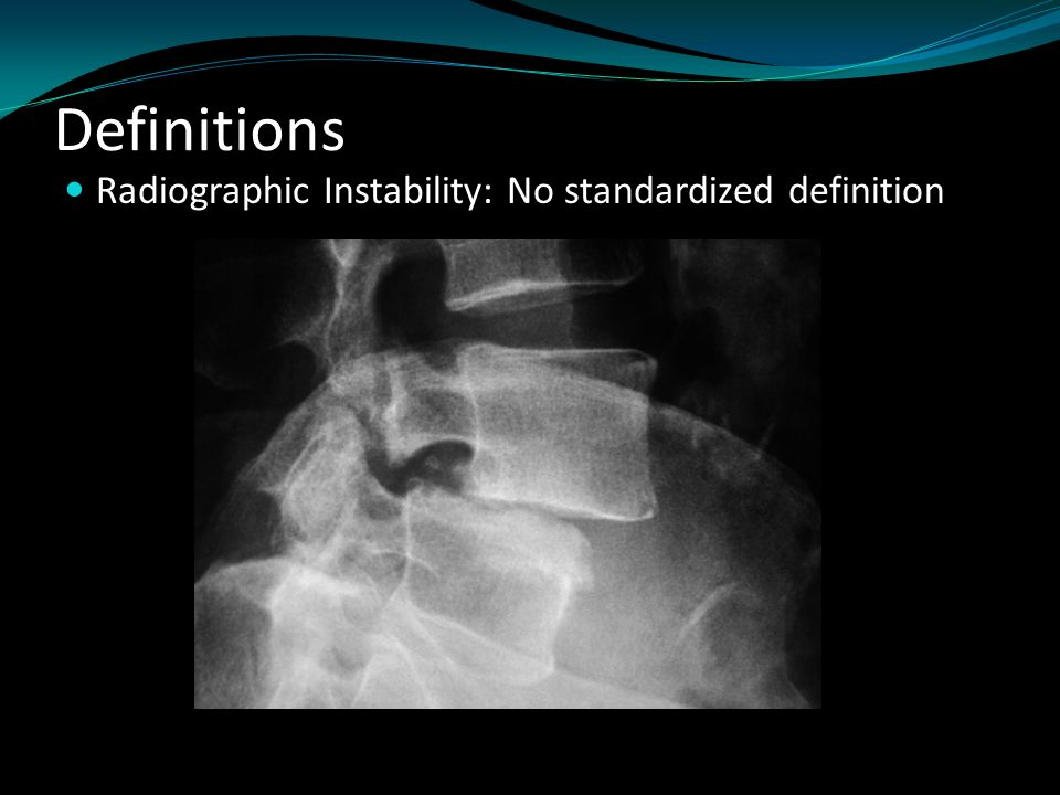 Definitions Radiographic Instability: No standardized definition