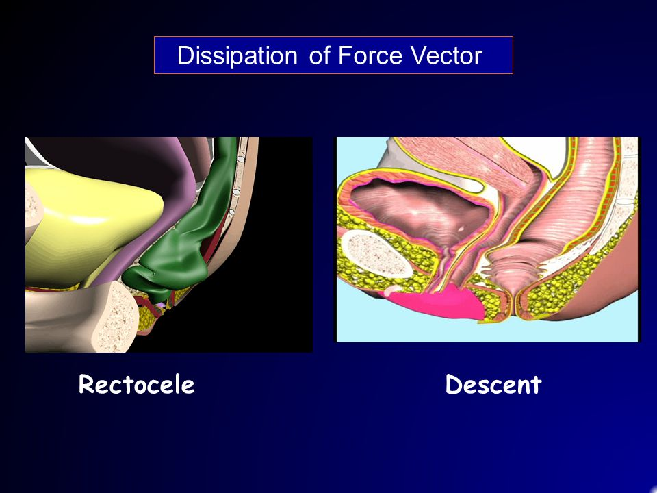 Dissipation of Force Vector