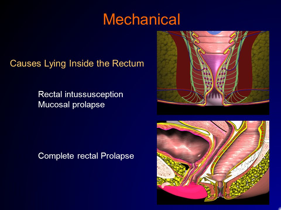 Mechanical Causes Lying Inside the Rectum Rectal intussusception