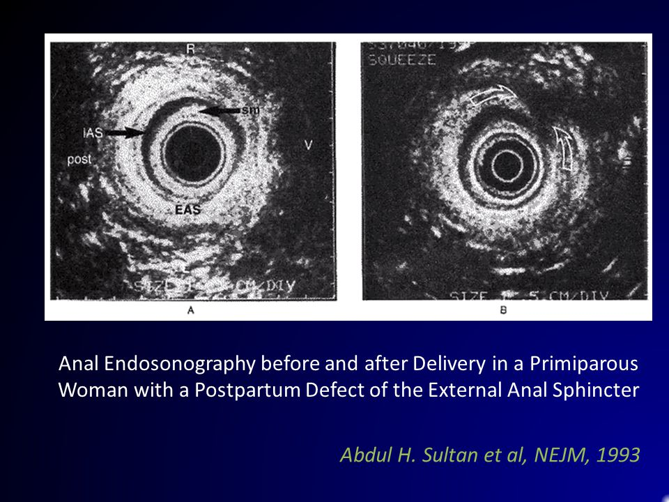 Anal Endosonography before and after Delivery in a Primiparous Woman with a Postpartum Defect of the External Anal Sphincter