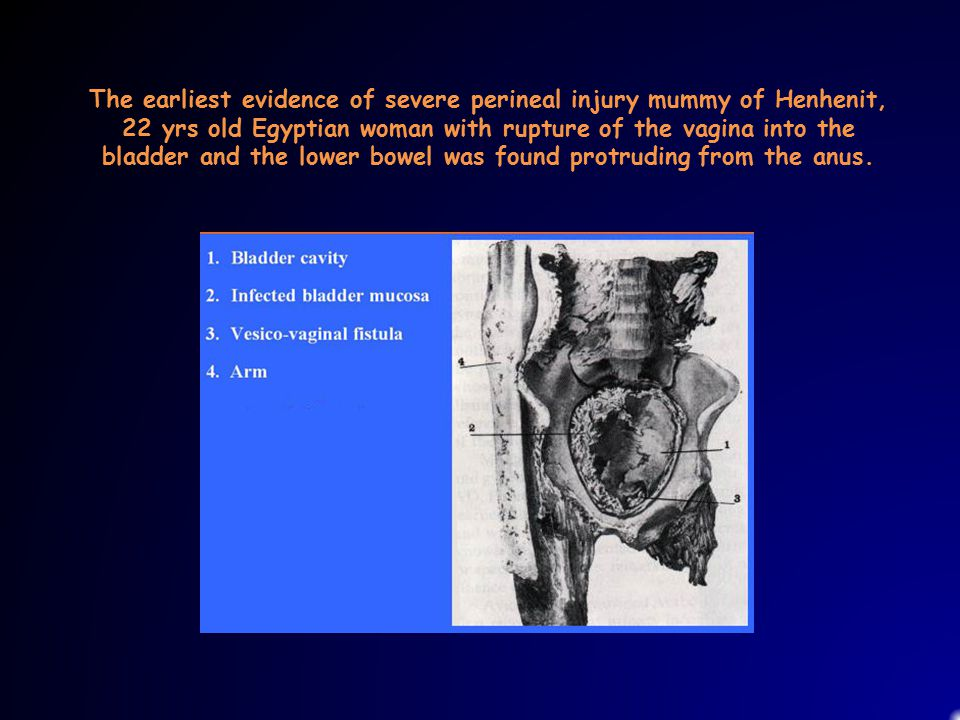 The earliest evidence of severe perineal injury mummy of Henhenit,