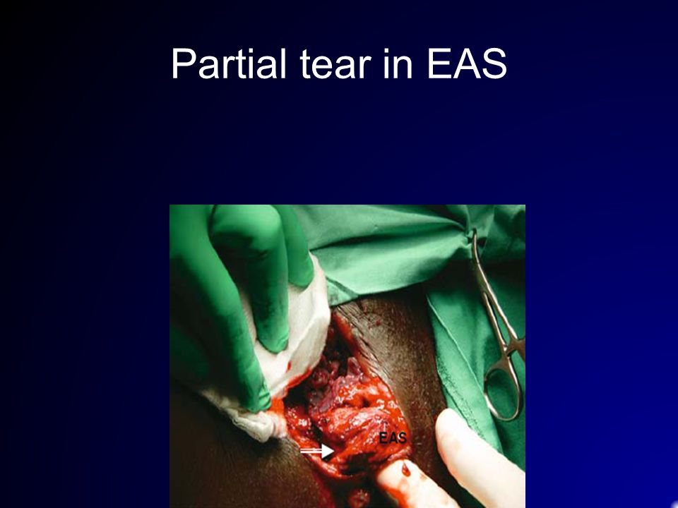 Partial tear in EAS