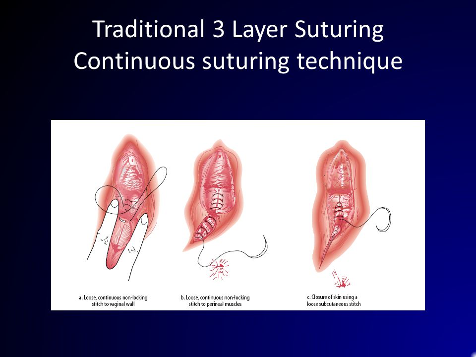 Traditional 3 Layer Suturing Continuous suturing technique