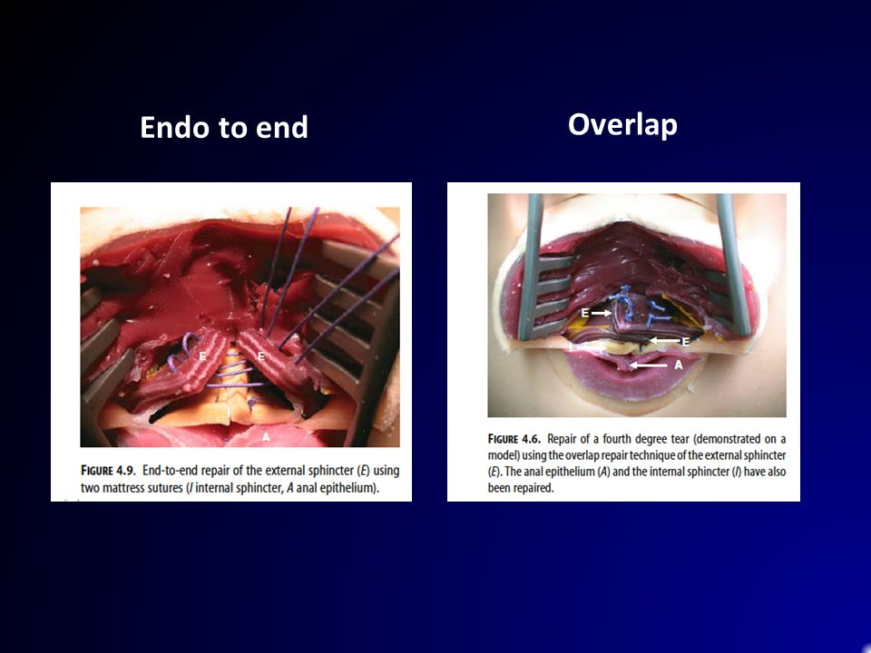 Endo to end Overlap