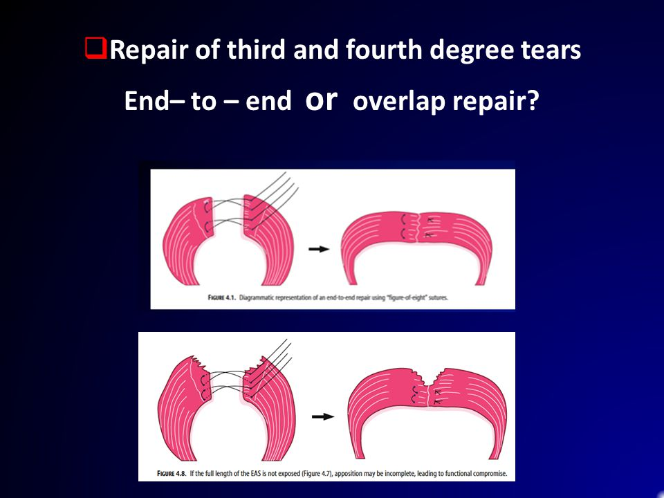 Repair of third and fourth degree tears