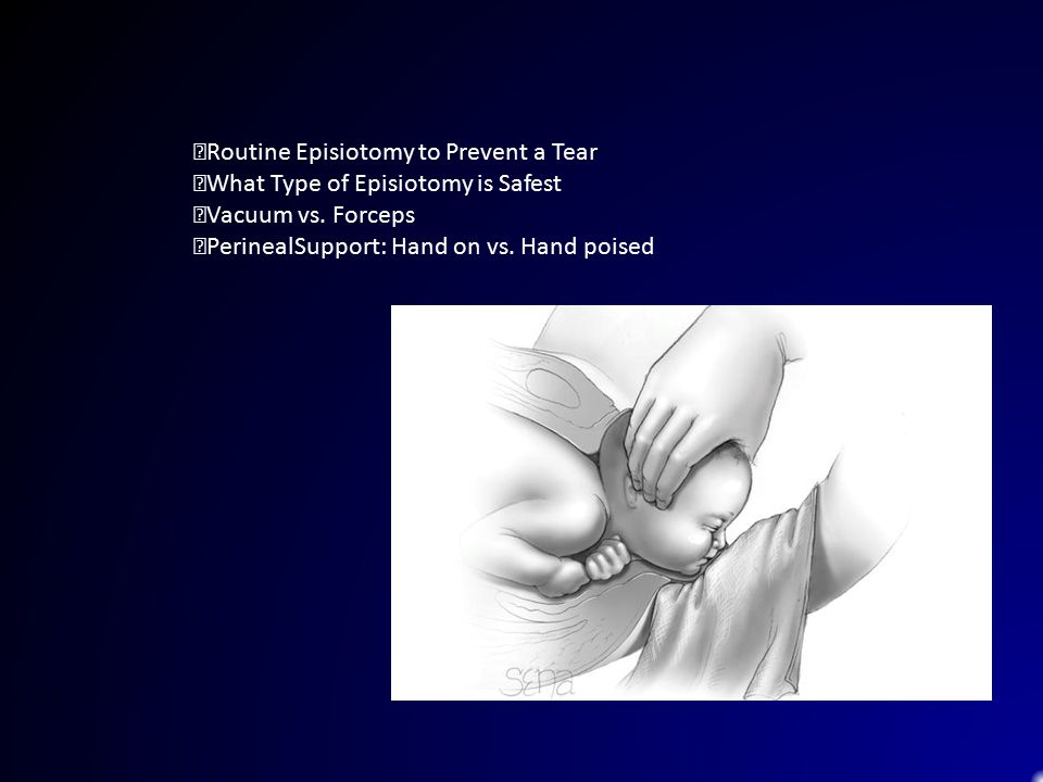Routine Episiotomy to Prevent a Tear