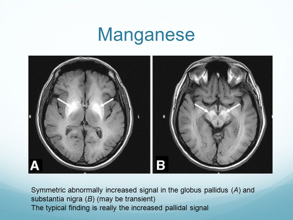 Manganese Symmetric abnormally increased signal in the globus pallidus (A) and substantia nigra (B) (may be transient)