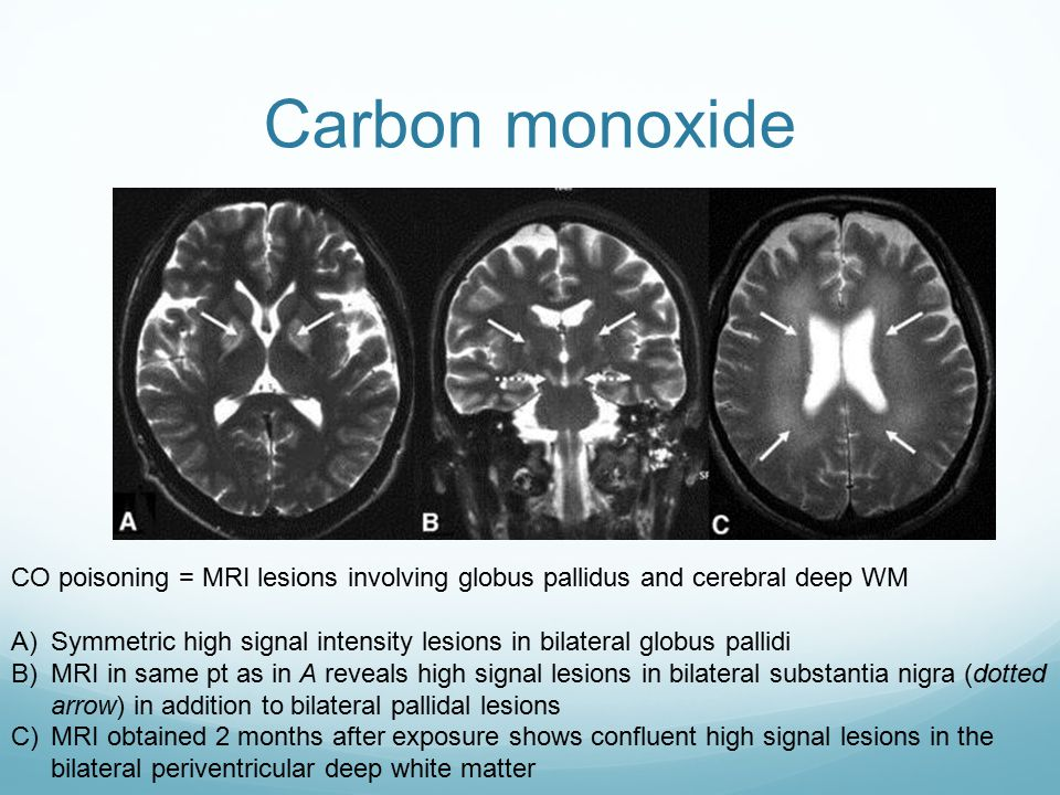 Carbon monoxide CO poisoning = MRI lesions involving globus pallidus and cerebral deep WM.