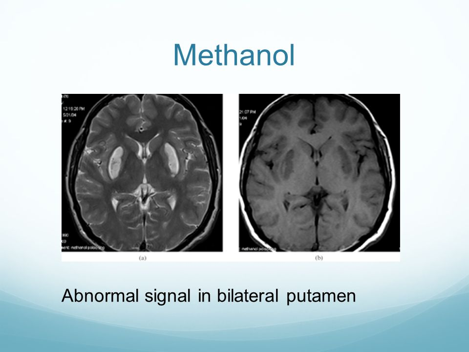 Methanol Abnormal signal in bilateral putamen
