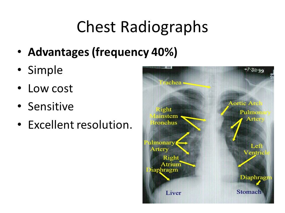 Chest Radiographs Advantages (frequency 40%) Simple Low cost Sensitive