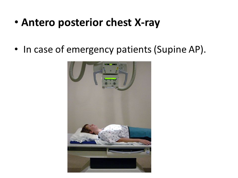 Antero posterior chest X-ray