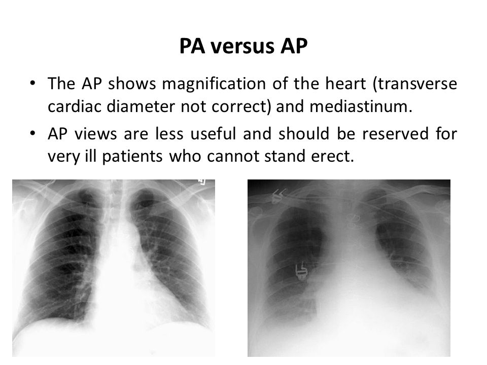 PA versus AP The AP shows magnification of the heart (transverse cardiac diameter not correct) and mediastinum.