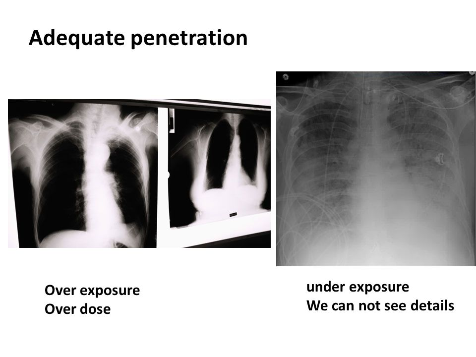 Adequate penetration under exposure Over exposure