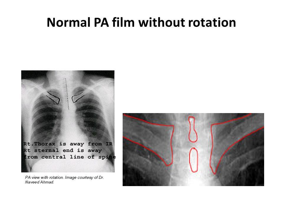Normal PA film without rotation