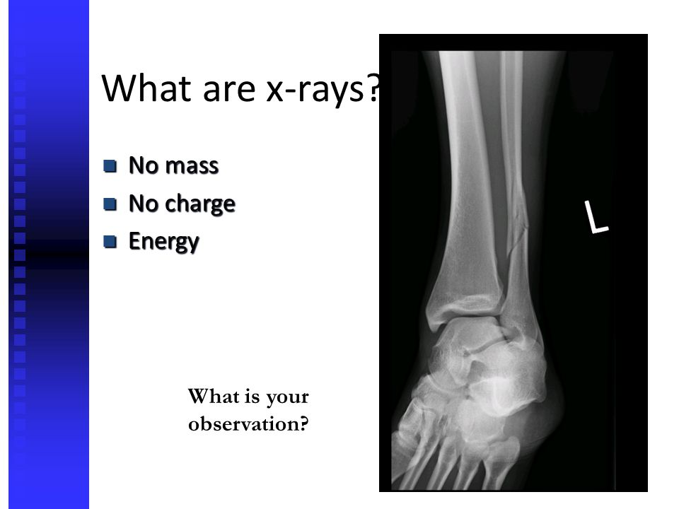 What are x-rays No mass No charge Energy What is your observation