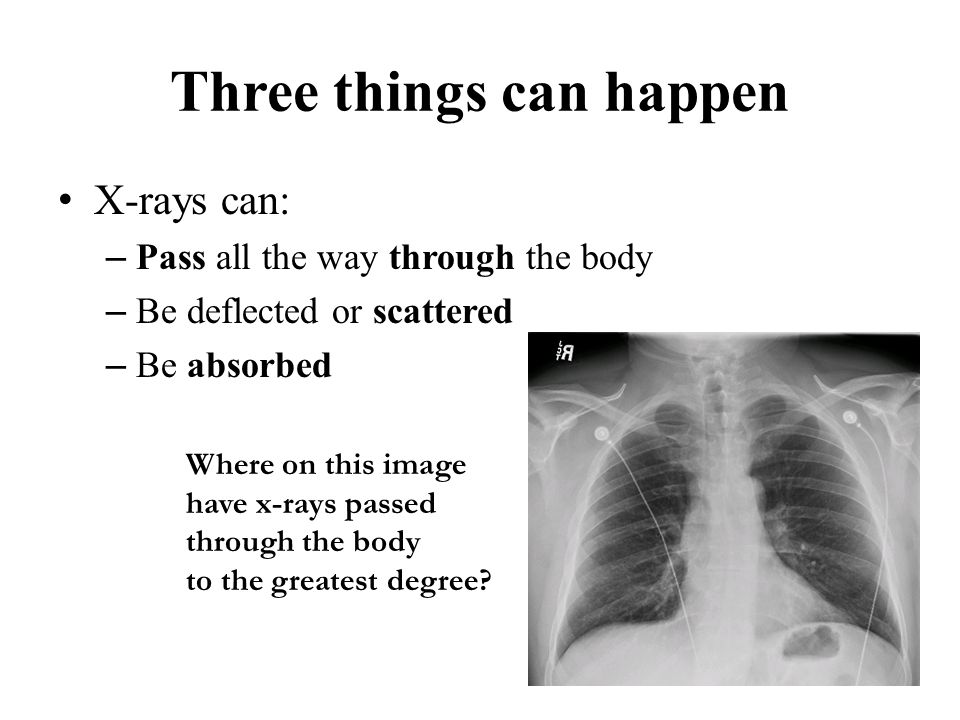 Three things can happen