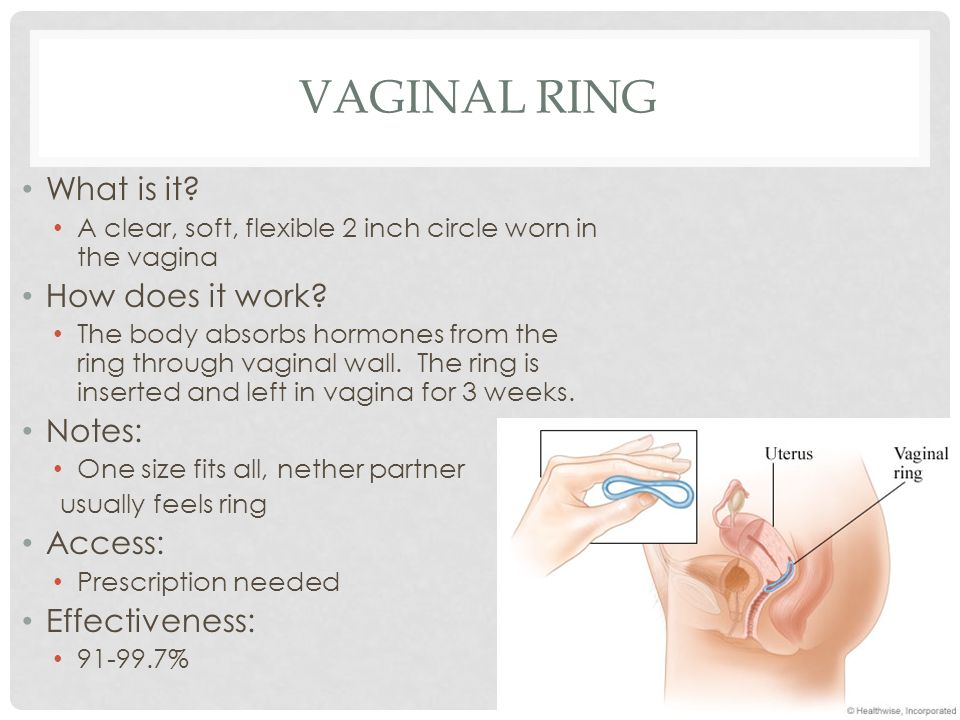 Vaginal ring What is it How does it work Notes: Access:
