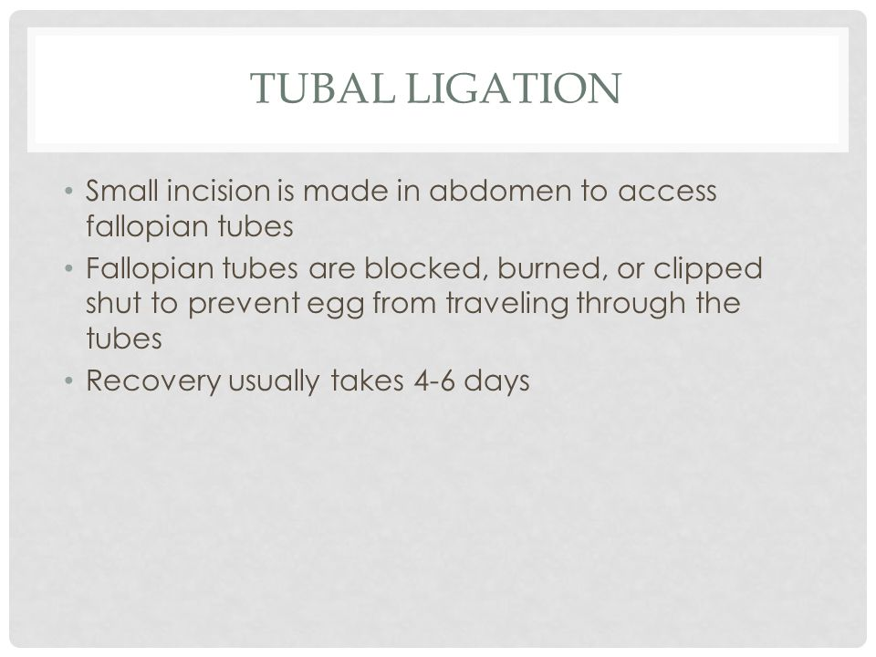 Tubal ligation Small incision is made in abdomen to access fallopian tubes.