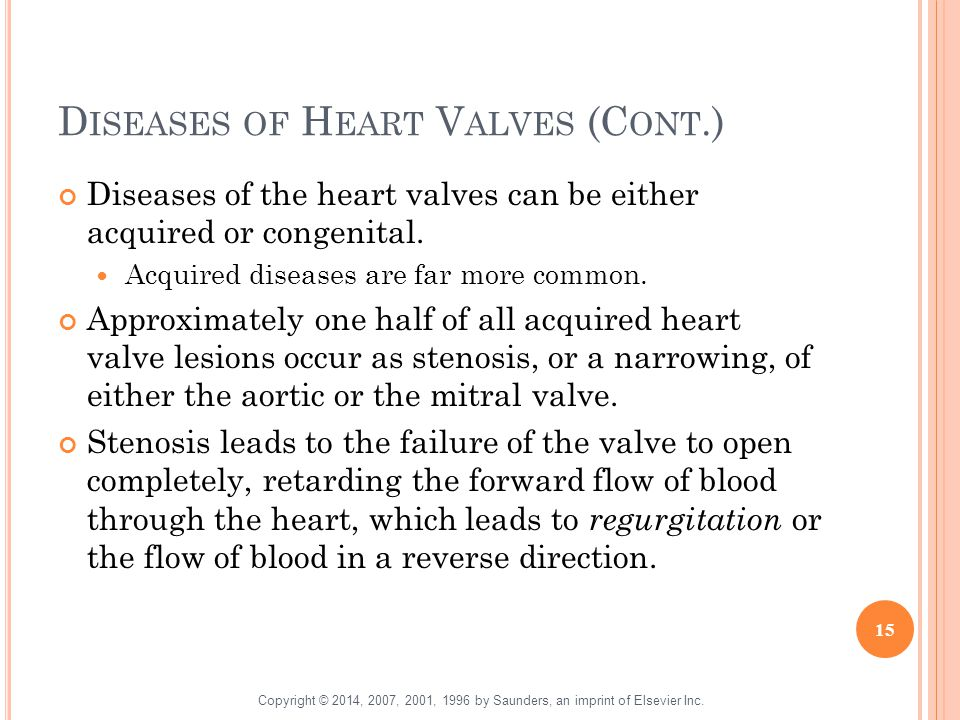 Diseases of Heart Valves (Cont.)