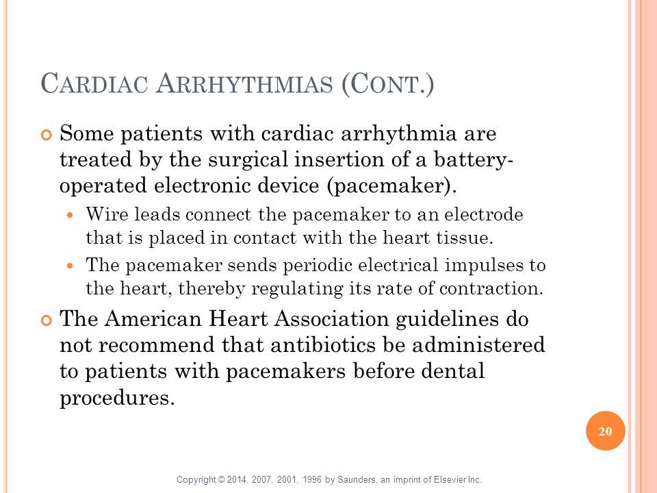 Cardiac Arrhythmias (Cont.)
