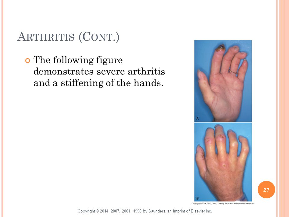Arthritis (Cont.) The following figure demonstrates severe arthritis and a stiffening of the hands.