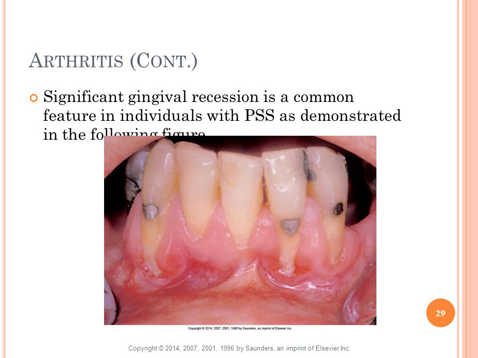 Arthritis (Cont.) Significant gingival recession is a common feature in individuals with PSS as demonstrated in the following figure.