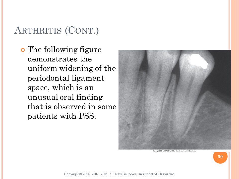 Arthritis (Cont.)