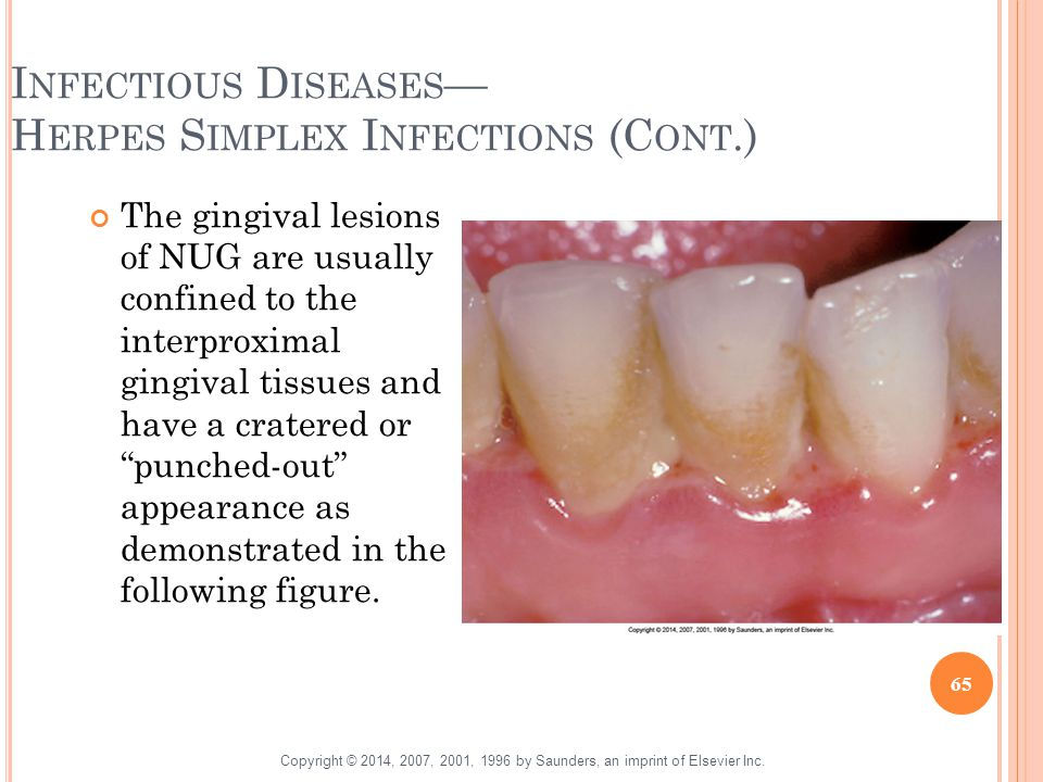 Infectious Diseases— Herpes Simplex Infections (Cont.)