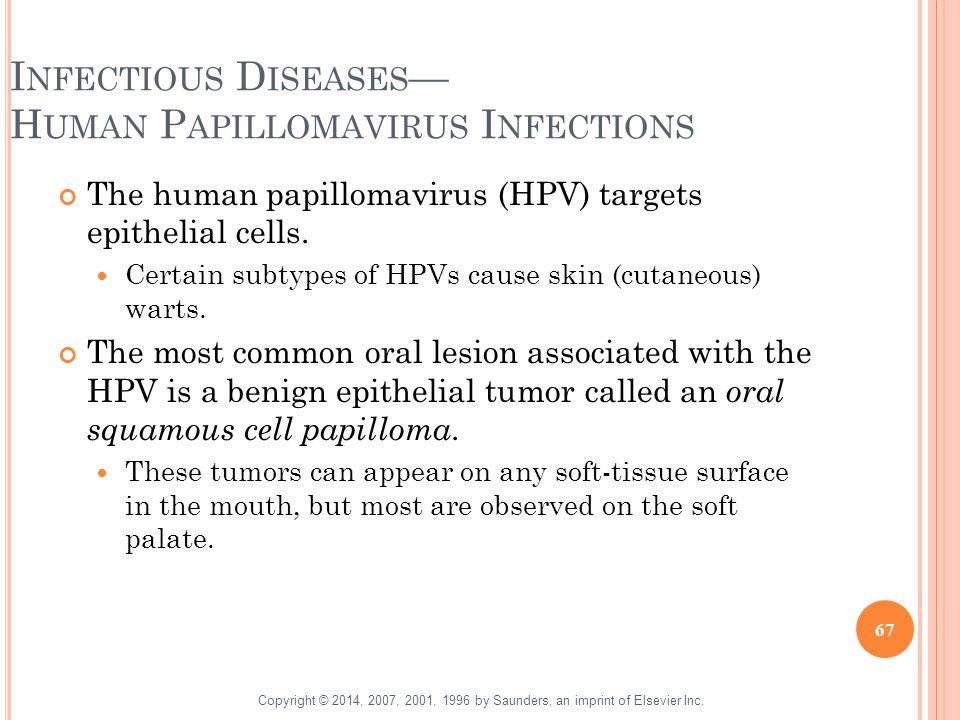 Infectious Diseases— Human Papillomavirus Infections