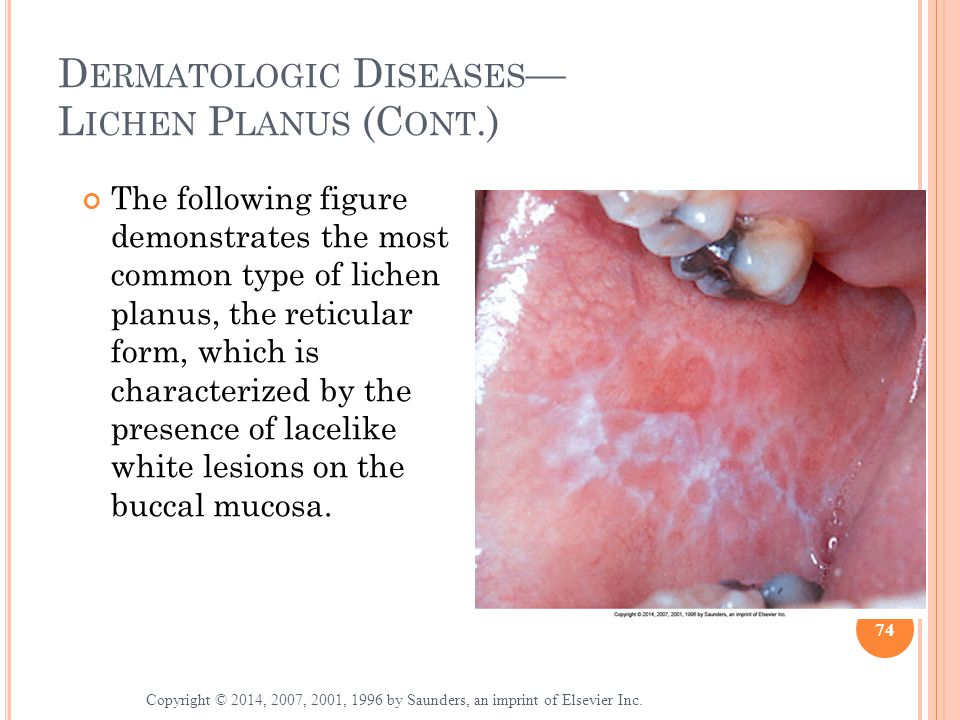 Dermatologic Diseases— Lichen Planus (Cont.)