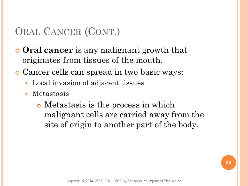 Oral Cancer (Cont.) Oral cancer is any malignant growth that originates from tissues of the mouth.