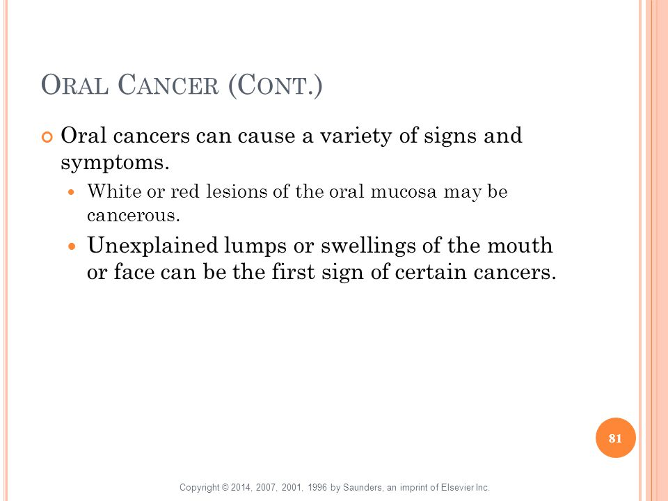 Oral Cancer (Cont.) Oral cancers can cause a variety of signs and symptoms. White or red lesions of the oral mucosa may be cancerous.