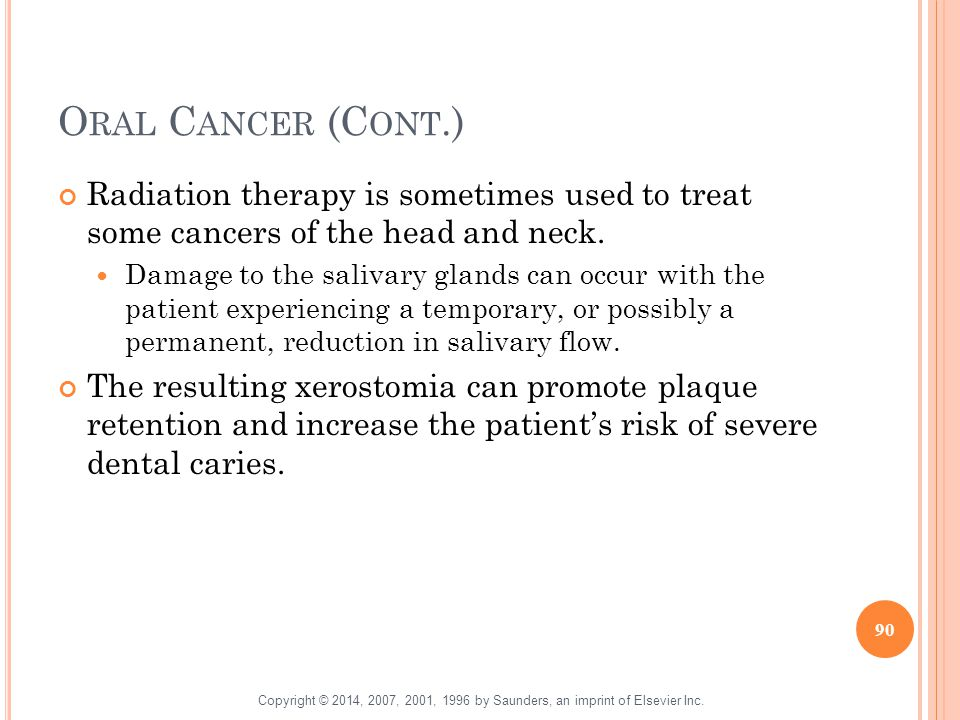 Oral Cancer (Cont.) Radiation therapy is sometimes used to treat some cancers of the head and neck.