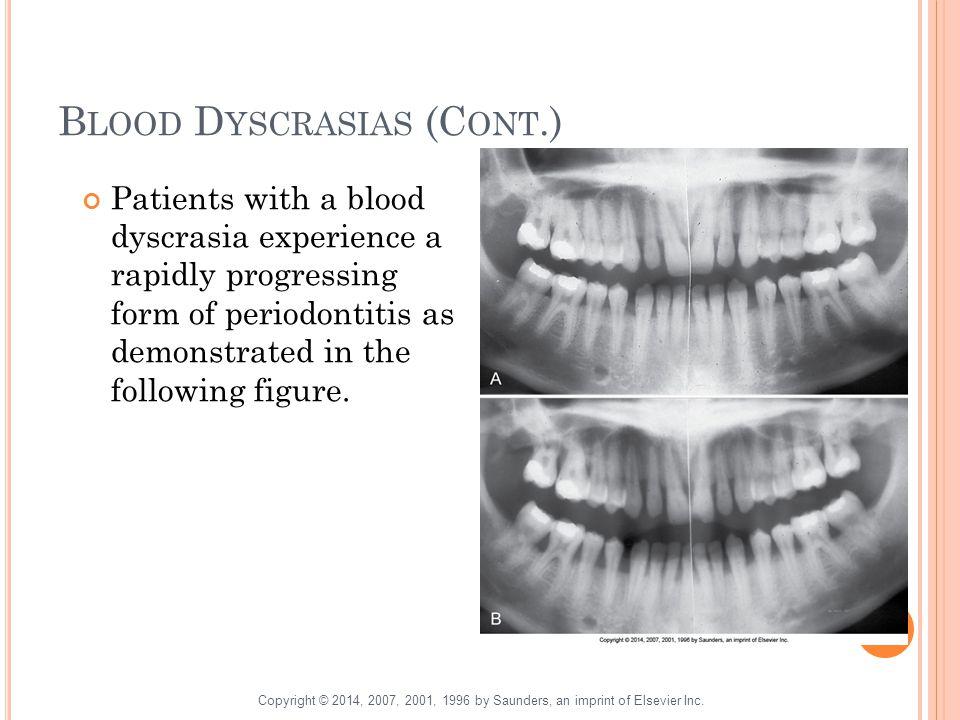 Blood Dyscrasias (Cont.)