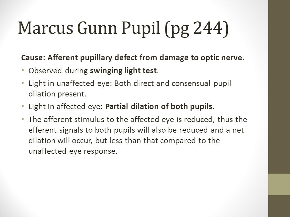 Marcus Gunn Pupil (pg 244) Cause: Afferent pupillary defect from damage to optic nerve. Observed during swinging light test.
