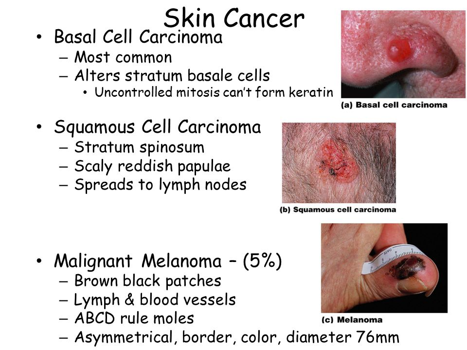 Skin Cancer Basal Cell Carcinoma Squamous Cell Carcinoma